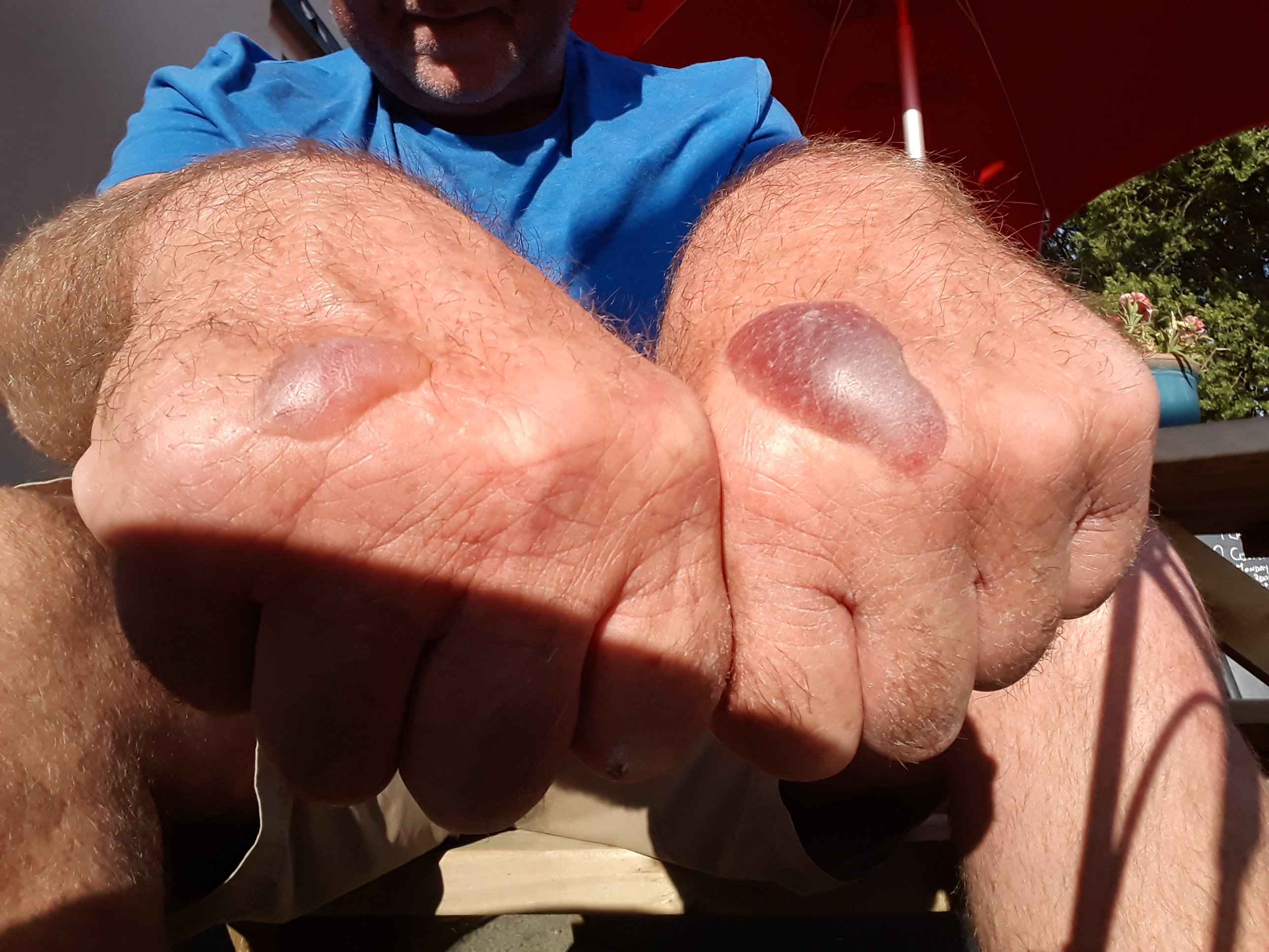 Big blisters on the back of hands